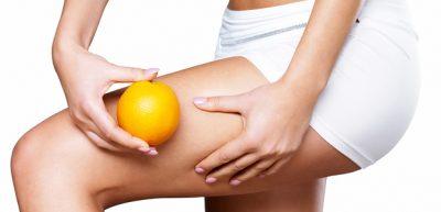 Celulitis-piel-de-naranja