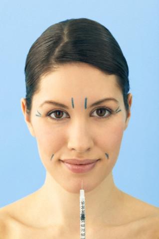 Zonas-de-inyección-estética-facial