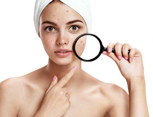 El acné ¿Qué es? Tratamiento y Consejos
