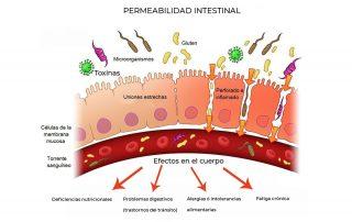 Permeabilidad intestinal. Causas Tratamientos